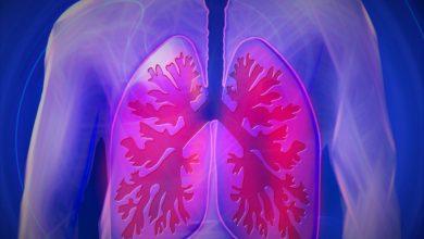 Photo of Koronavirüs bulaşmış akciğerlerin hâli!
